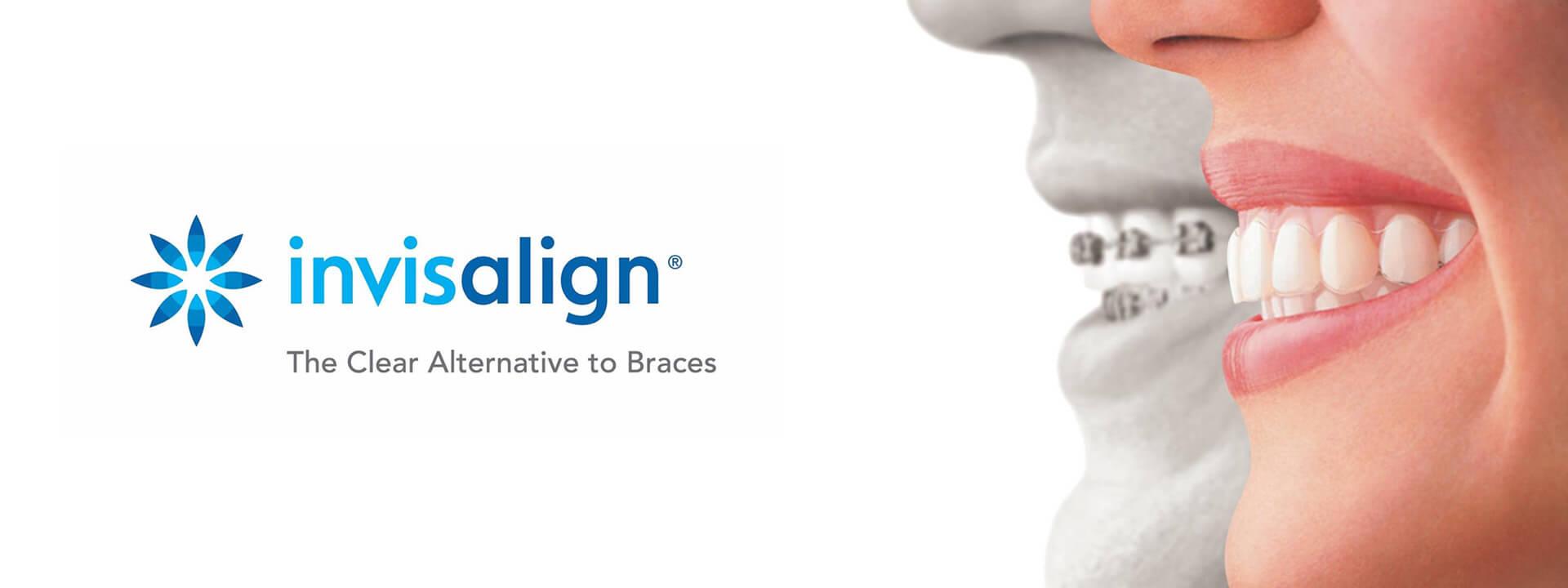 Ortodoncia Invisible Invisalign® | Morelló Clínica Dental en Barcelona